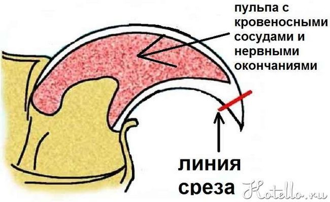Se taie ghearele de nevoie, până la punctul în care începe pulpa de unghii